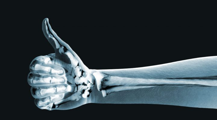 Fighting osteoporosis: 5 ways to 'futureproof' your bones