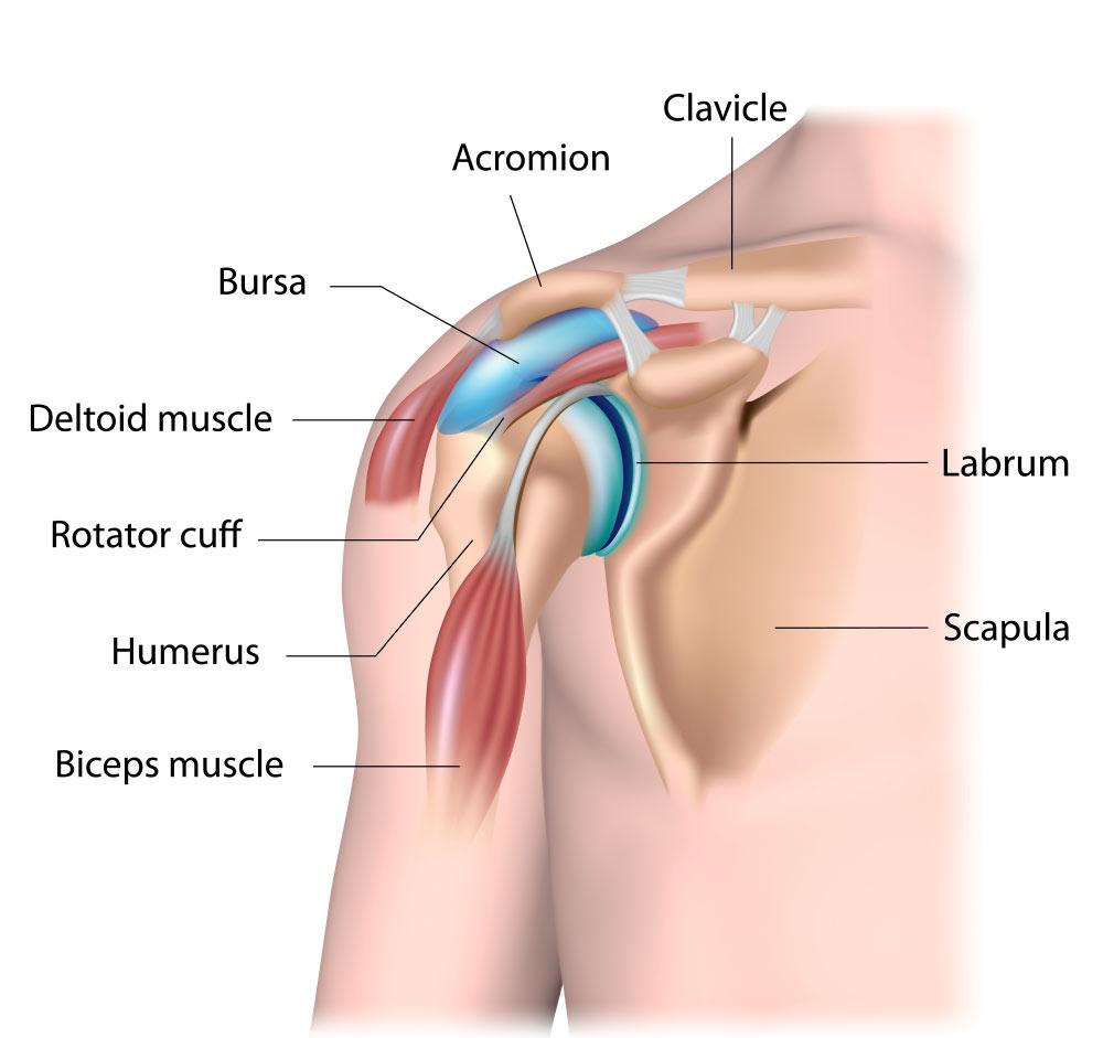 Subacromial impingement