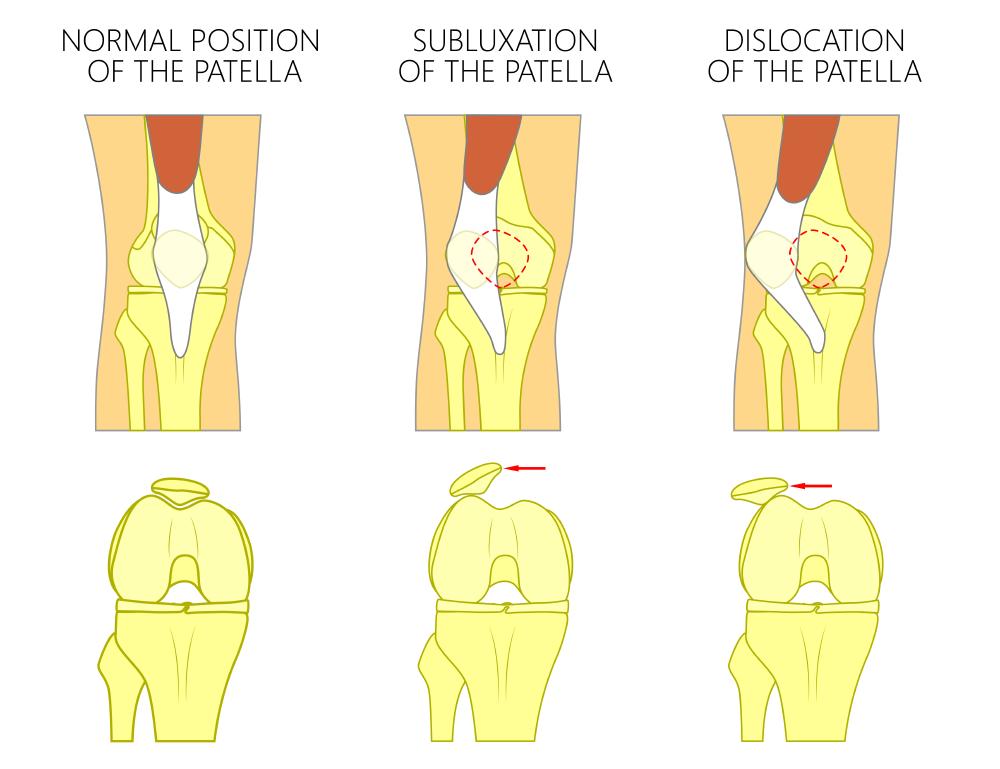 Knee Cap Disorders