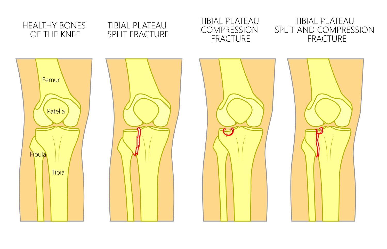 Knee fractures