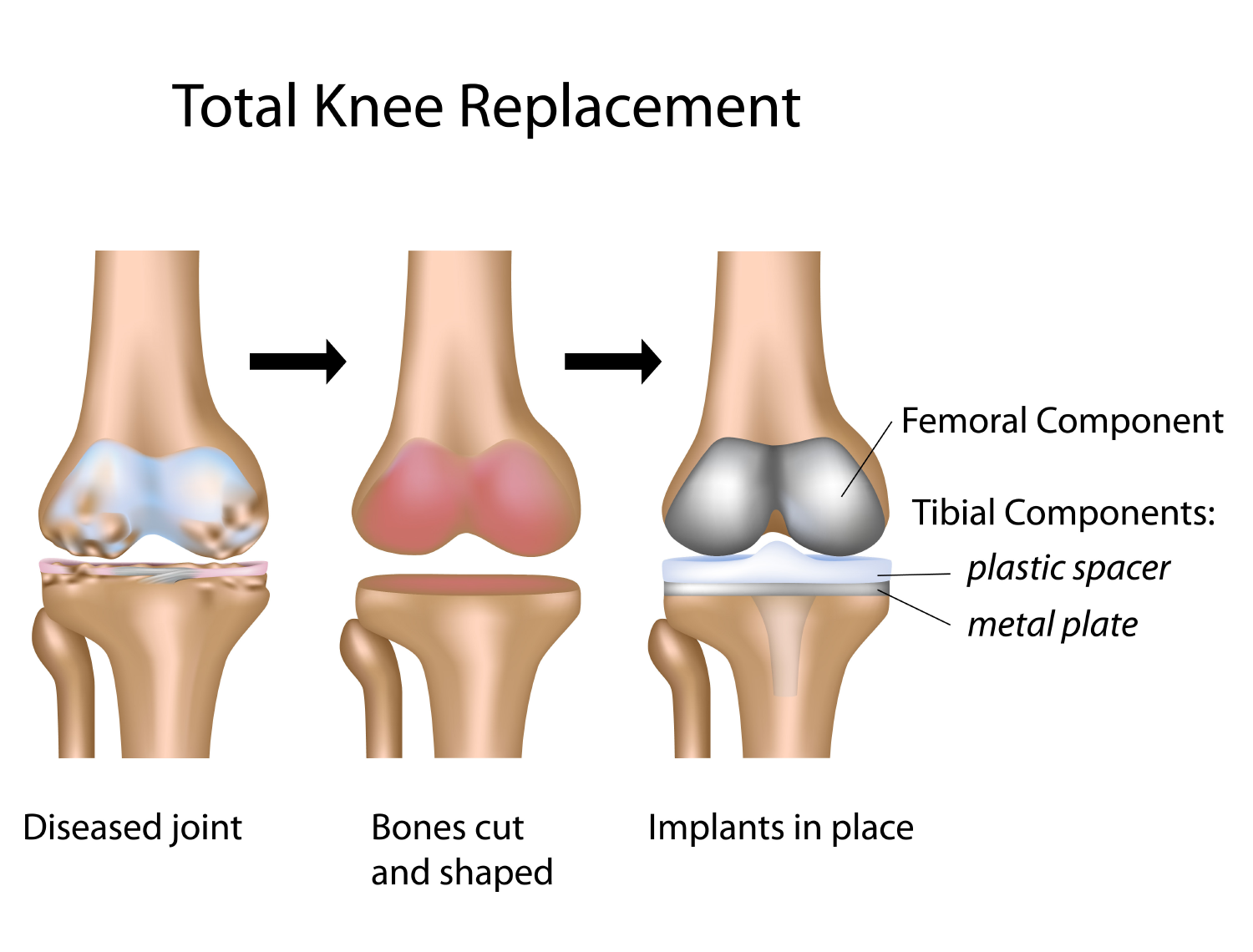 Painful knee replacement (revision procedures)