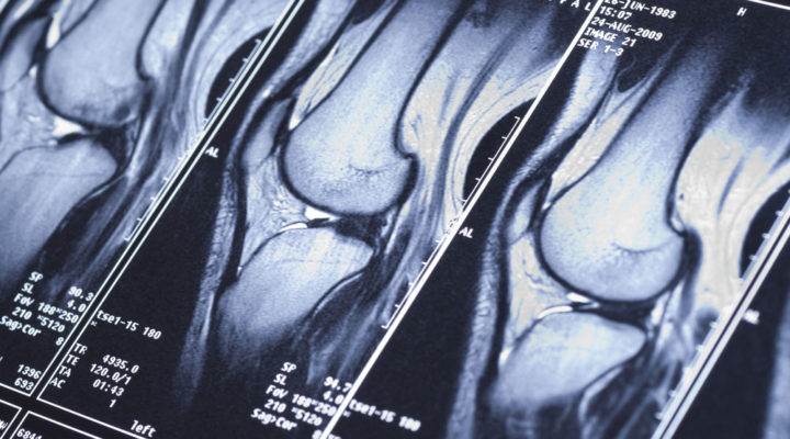 MRI simplified how to get scanned and seen in a fraction of the time - Chris Bailey