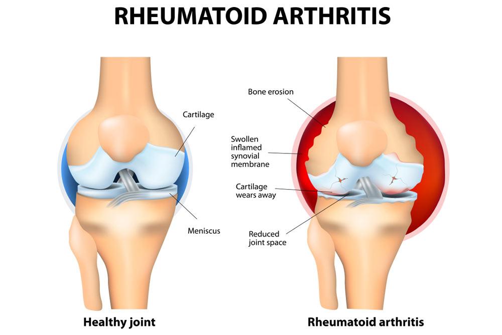 Rheumatoid Arthritis - Chris Bailey