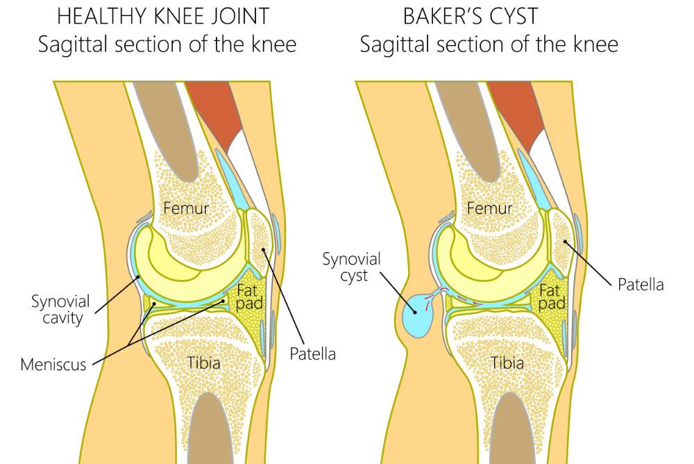 The Baker's Cyst - Chris Bailey