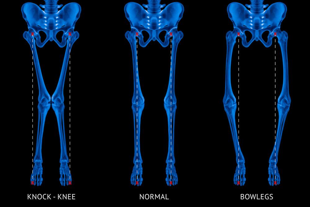 knock kneed or bow-legged Chris Bailey