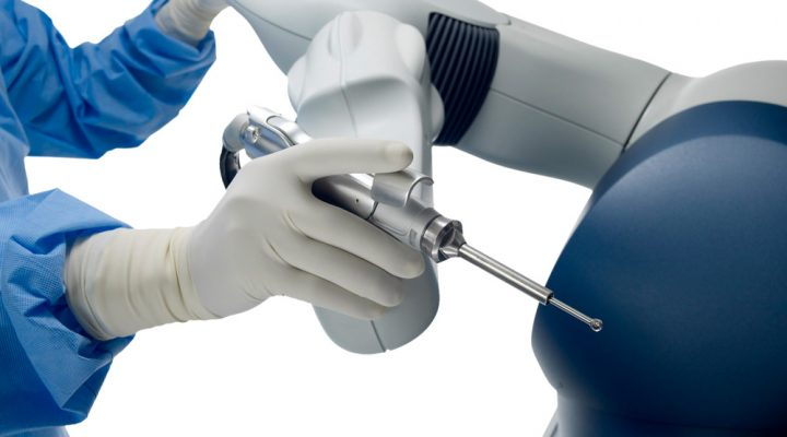 robotic surgery good option for partial knee replacements - Chris Bailey