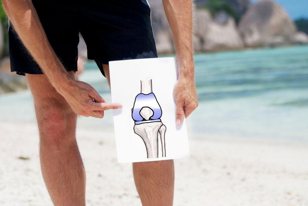 confidence about knee replacements